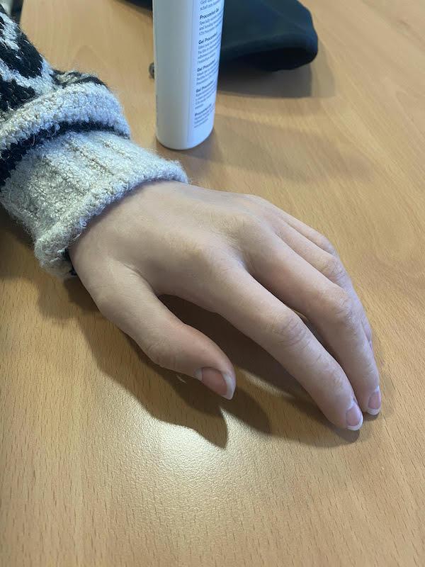 celine-prothese-main